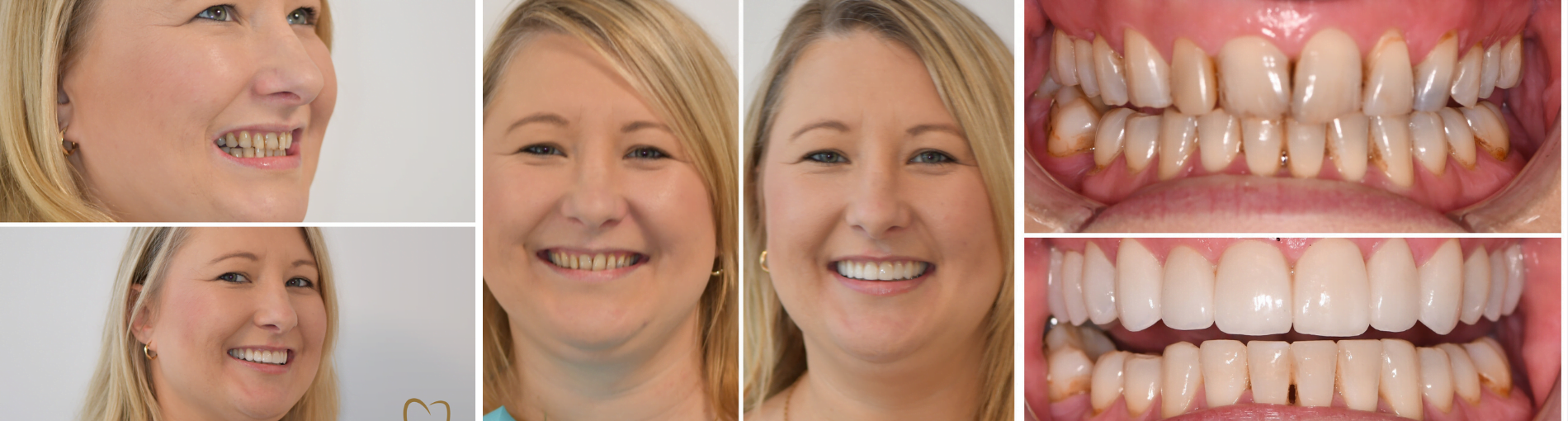 Creating beautiful smiles on the Central Coast
