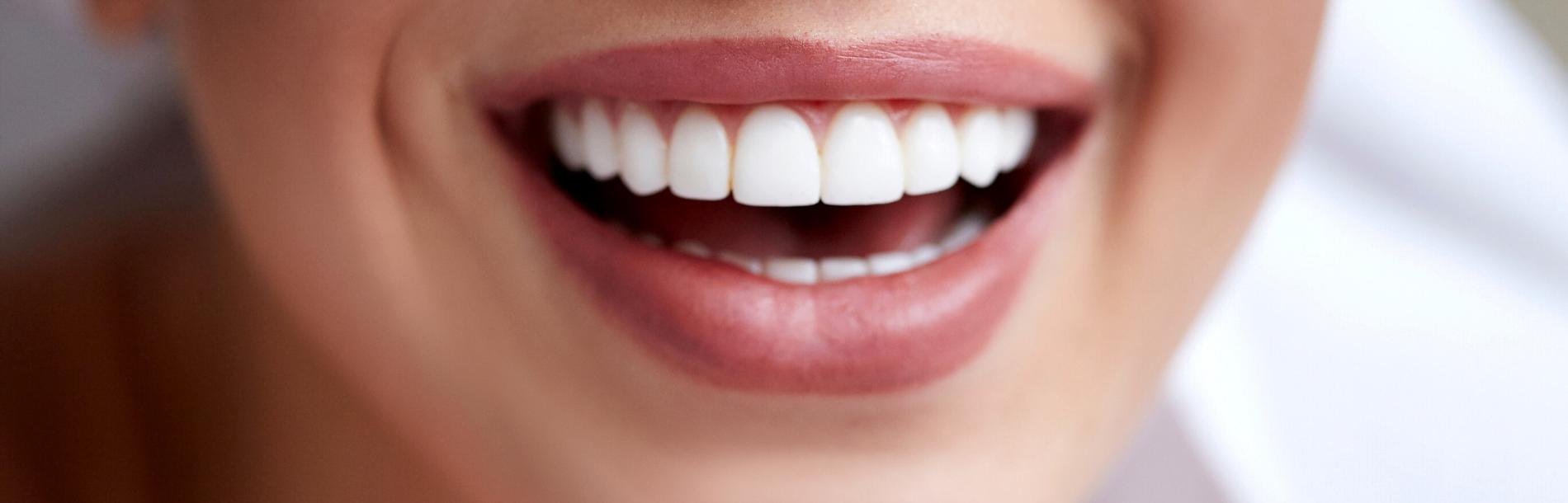 Warnervale Dental- Your Destination for Dental Implants