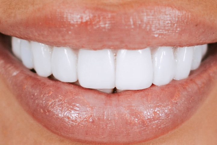dental veneers central coast