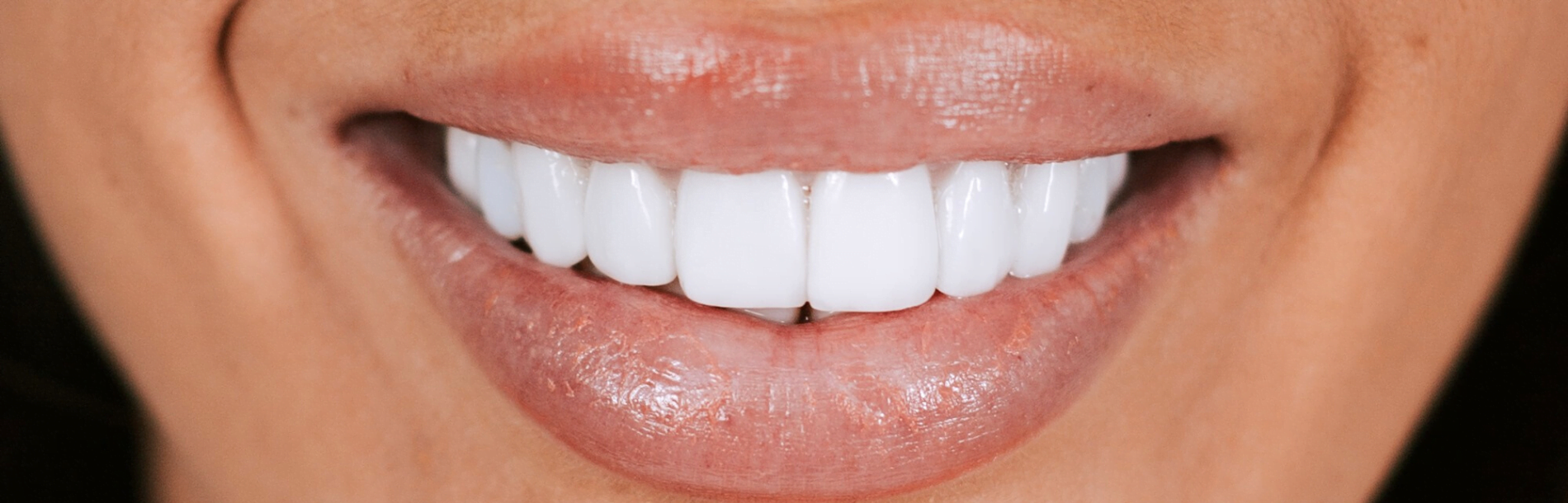 Dental Veneers – Everything You Need to Know