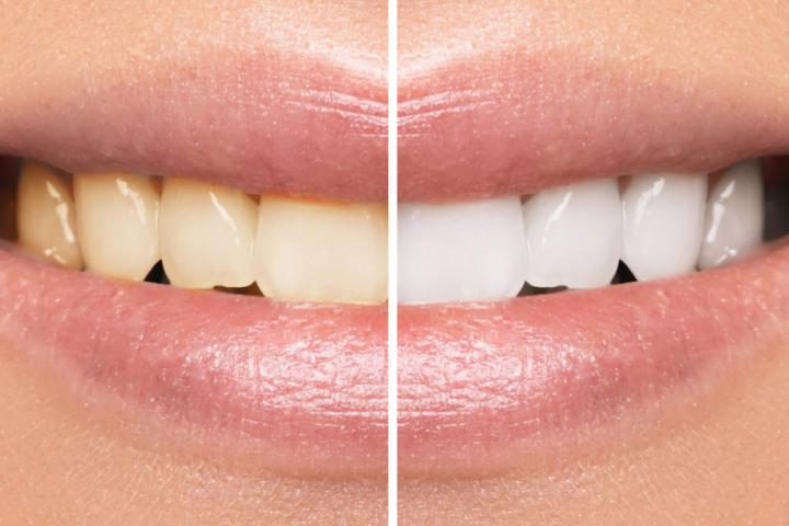 Teeth whitening central coast