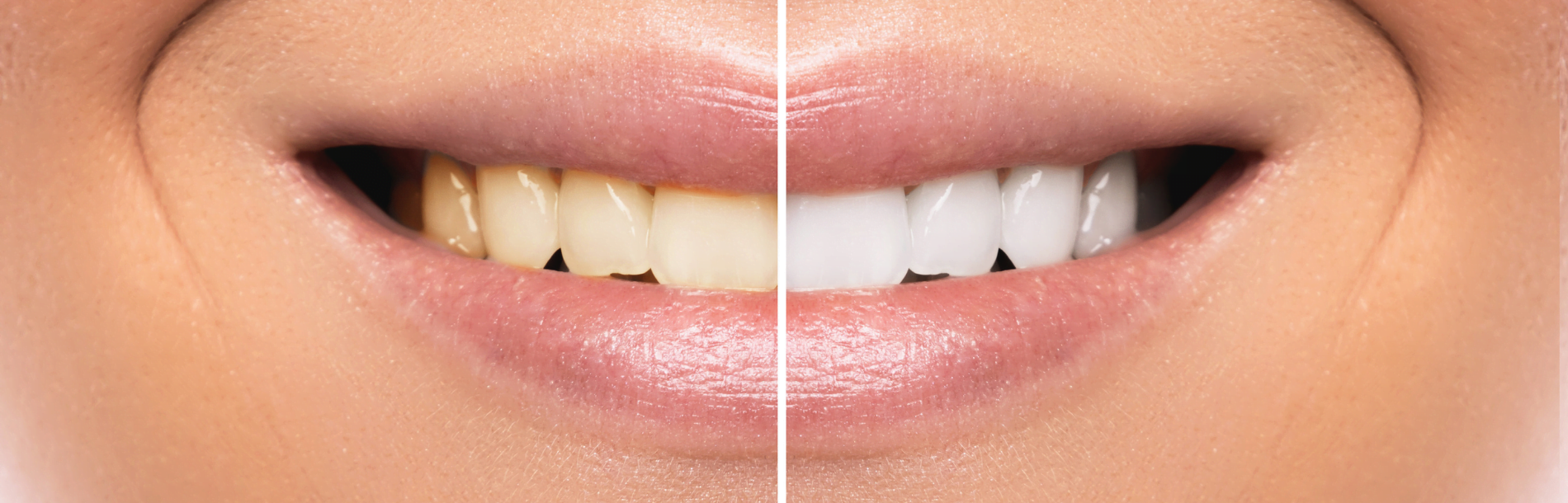 Teeth whitening central coast