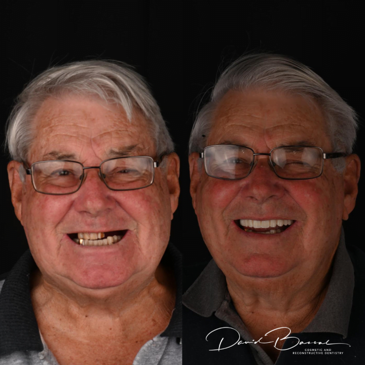 teeth on implants teeth on before and after
