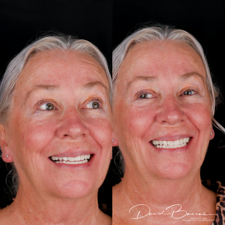 dental implants teeth on before and after