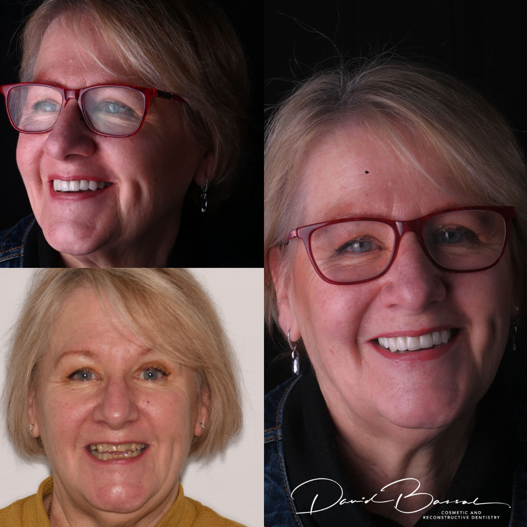 before and after teeth on implants digital dentistry